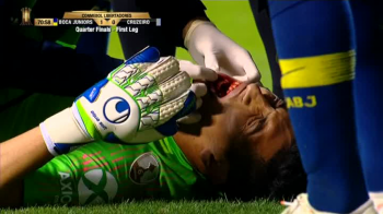 I-a SPART dintii portarului cu capul! Incident dramatic in Copa Libertadores! VIDEO