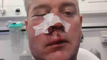 Arbitru masacrat de fotbalisti la finalul meciului! Imagine socanta: centralul, rupt cu bataia de echipa invinsa! Unde a avut loc incidentul