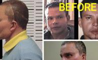 Cum a ajuns sa arate omul care a facut 4 operatii estetice ca sa nu fie gasit si omorat de traficantii de droguri