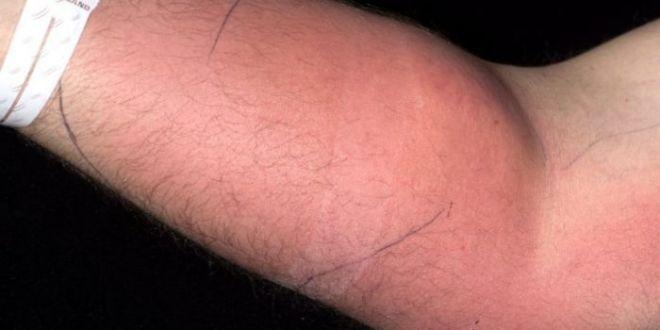 Motivul pentru care un bărbat și-a injectat spermă în braț. Cazul său, unic în lume