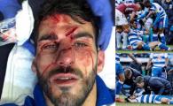 IMAGINE DE GROAZA | Un atacant din Championship a fost calcat pe cap de un fundas advers si s-a ales cu rani teribile. MOMENTUL A FOST FILMAT