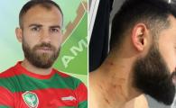 ULTIMA ORA | Suspendarea primita de fotbalistul care si-a atacat adversarul CU LAMA pe teren, in Turcia