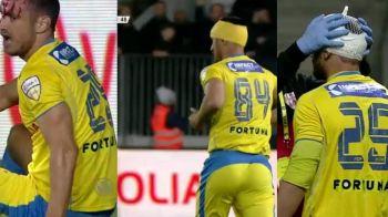 Caz incredibil in Liga 2! Un fotbalist de la Petrolul a jucat cu 3 numere diferite in acelasi meci: cum a fost posibil
