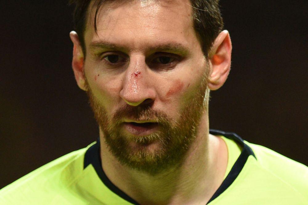 Care este starea lui Messi dupa ce a fost umplut de sange pe Old Trafford: