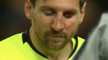 Messi intra in laborator! Medicii se tem ca are fractura dupa ce a fost UMPLUT de sange la Manchester