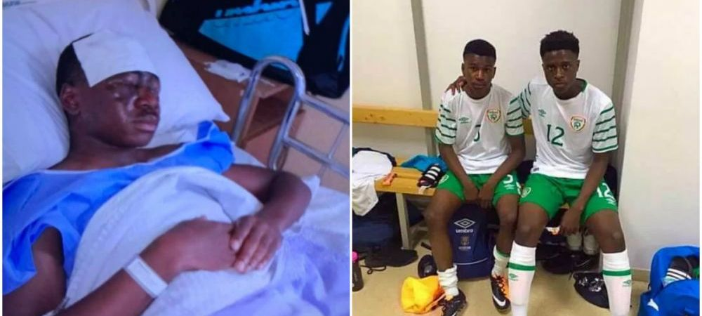 """Inimaginabil! Un fotbalist a fost atacat cu acid si isi poate pierde vederea! """"Doctorii fac tot ce pot in acest moment"""""""