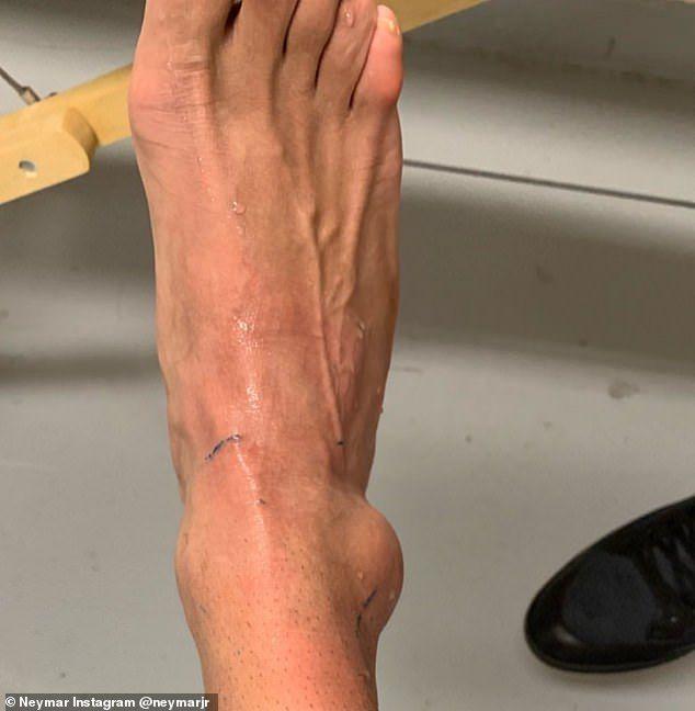 face clic pe gleznă după accidentare pozimed constanta preturi radiografie