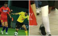 ALASHKERT - FCSB 0-3: Noi probleme pentru Bogdan Andone! Titularul care s-a intors cu piciorul bandajat din Armenia. FOTO