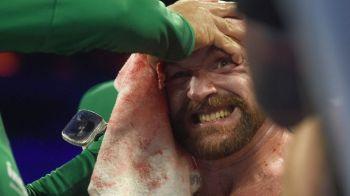 Tyson Fury, meci ULUITOR: si-a invins adversarul cu fata plina de sange si a fost dus la spital. FOTO