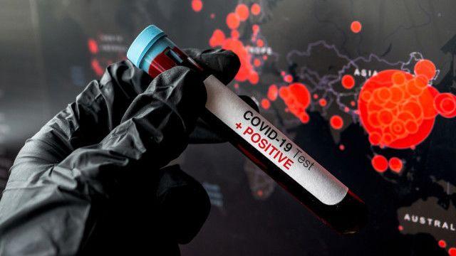 Misterul testelor pentru coronavirus a fost deslusit! De ce difera rezultatele intr-un timp atat de scurt: explicatiile unui doctor