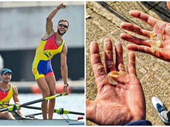 Suferințele din spatele unei medalii olimpice   Poza cu palmele lui Ciprian Tudosă, dovada sacrificiilor uriașe