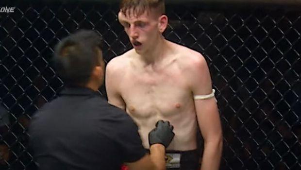 Imagini extrem de dure din MMA! Un luptător s-a ales cu un hematom uriaș în timpul luptei